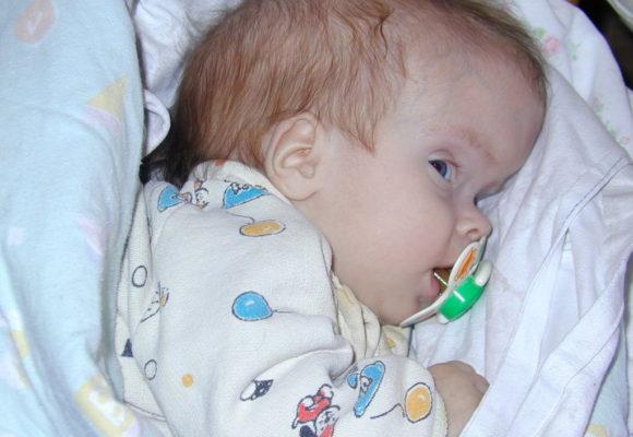 Почему у новорожденного неровный череп