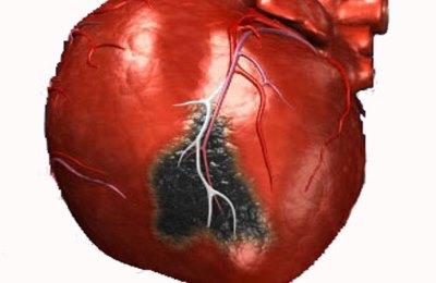 8 месяцев после инфаркта