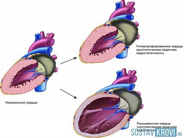 Систолическая функция левого желудочка снижена