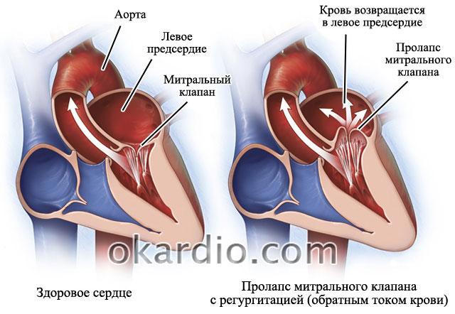 Пролапс митрального клапана и аритмия