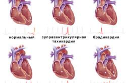 Синусовый ритм сердца норма у взрослых женщин