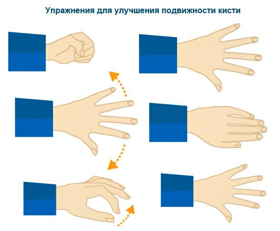 Упражнения руки после инсульта в картинках