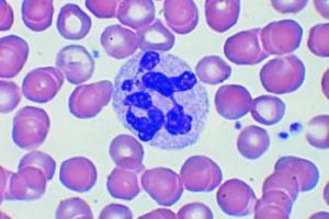 Повышенное содержание лейкоцитов в крови