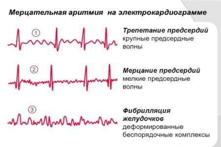 Понятие об аритмиях. Каковы виды аритмии сердца