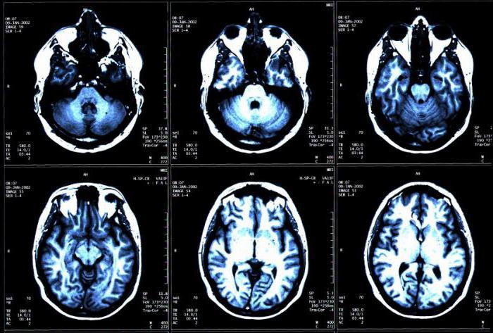 Опасность сосудистой мальформации как диагностировать и предупредить опасную патологию
