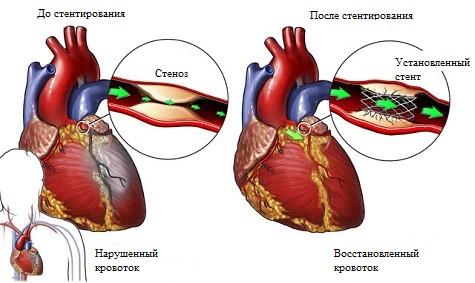 Осложнения после стентирования коронарных сосудов сердца. Что ...