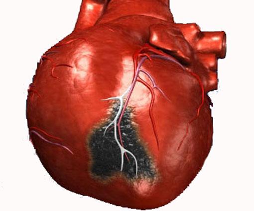 Общий анализ крови при инфаркте миокарда показатели