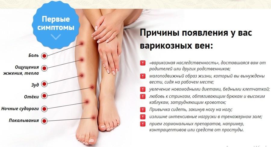 Эффективные народные средства от отеков ног при варикозе. Признаки ...