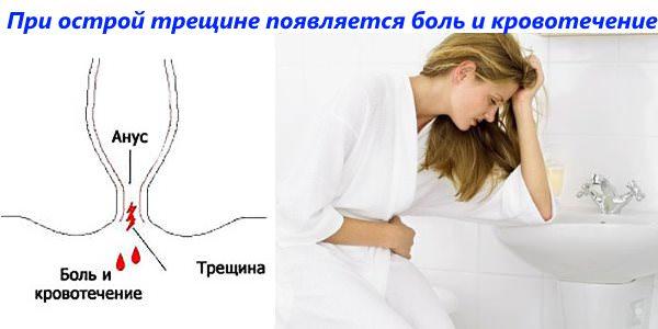 Трещины заднего прохода чем лечить