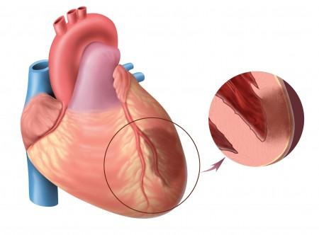 Обширный инфаркт после 80 лет шансы выжить. Питание после инфаркта. Что может спровоцировать патологию
