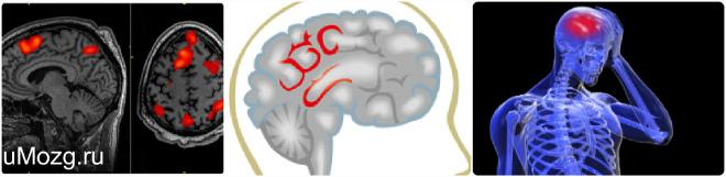 Discirculatory beyin ensefalopati 55
