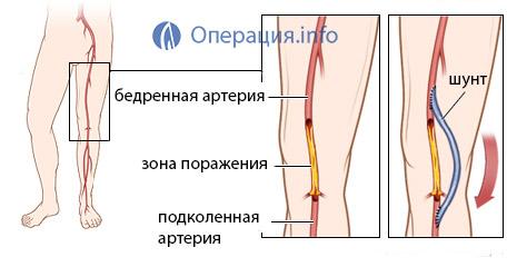 Стентирование сосудов нижних конечностей в Москве, цены