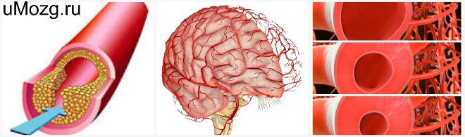 Discirculatory beyin ensefalopati 98