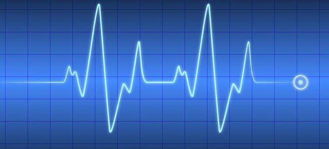 Нормальный сердечный ритм
