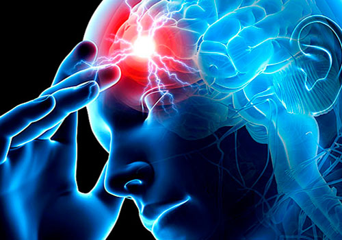 Αποτέλεσμα εικόνας για εγκεφαλικό επεισόδιο